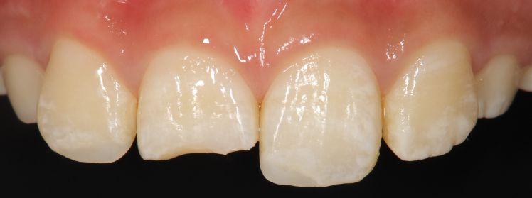 外傷歯②ダイレクトボンディング治療前